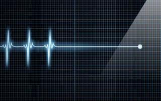 Может ли человек умереть от порока сердца