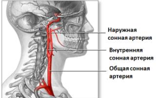 Болит сонная артерия справа