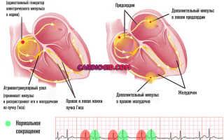 Бигеминия сердца насколько опасно