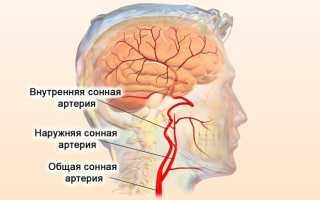 Аневризма сонной артерии операция