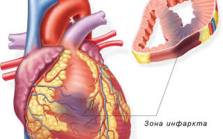 Во сколько лет может быть инфаркт миокарда