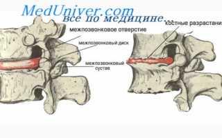 Боли в грудной клетке после инфаркта