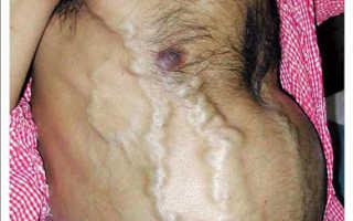 Болезнь и синдром бадда киари