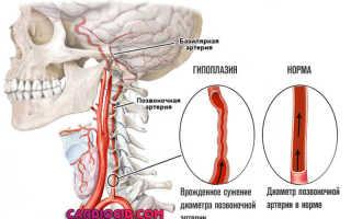 Гипоплазия левой позвоночной артерии как лечить