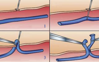Минифлебэктомия или склерозирование вены что лучше