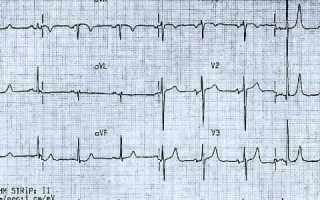 Артериальная гипертензия экг