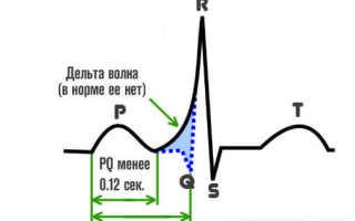 Феномен укороченного интервала pq