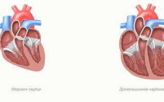 Дилатация левых отделов сердца