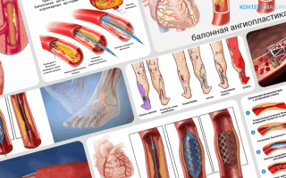 Ангиопластика сосудов сердца