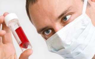 Биохимический анализ крови берется откуда