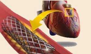Боли в сердце после инфаркта и стентирования