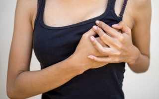 Боль слева спереди в области сердца