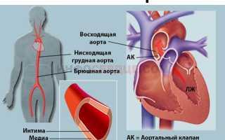 Что значит аорта уплотнена в легких