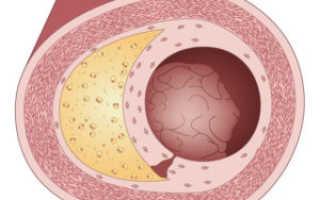 Атеросклероз сосудов к какому врачу обращаться