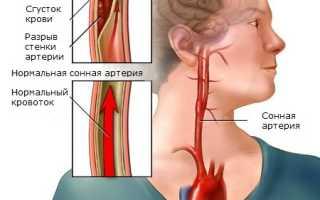 Боль в шее слева в области сонной артерии